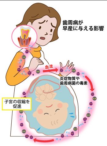 妊婦さんの歯周病がお子さんにもたらすリスク